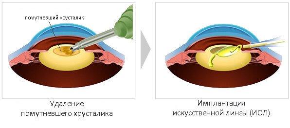 Замена хрусталика глаза Запорожье