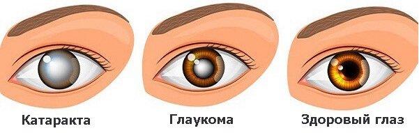 Лечение катаракты и глаукомы одновременно Запорожье