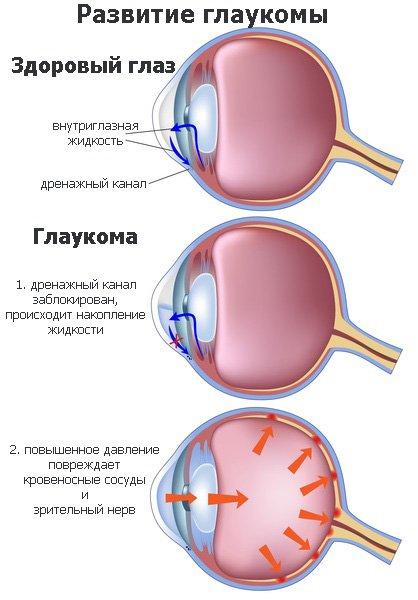 Глаукома заболевание глаз