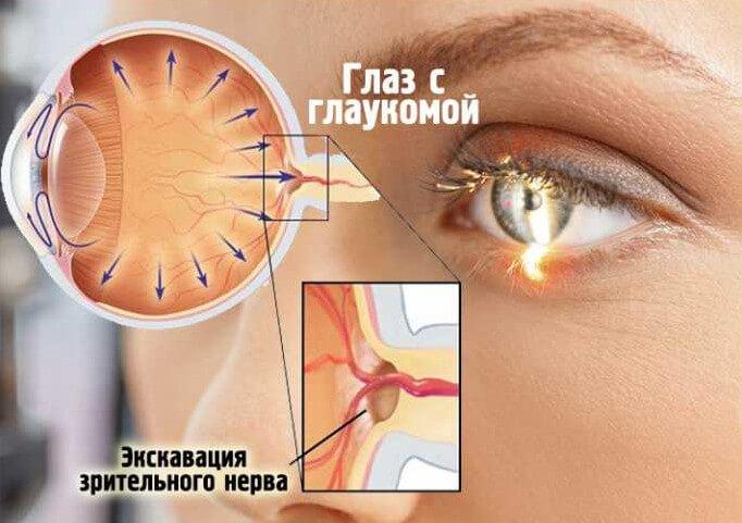 Лечение вторичной глаукомы