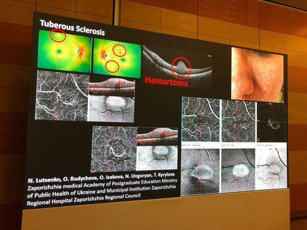 РудычеМеждународный офтальмологический конгресс в Риме декабрь 2018