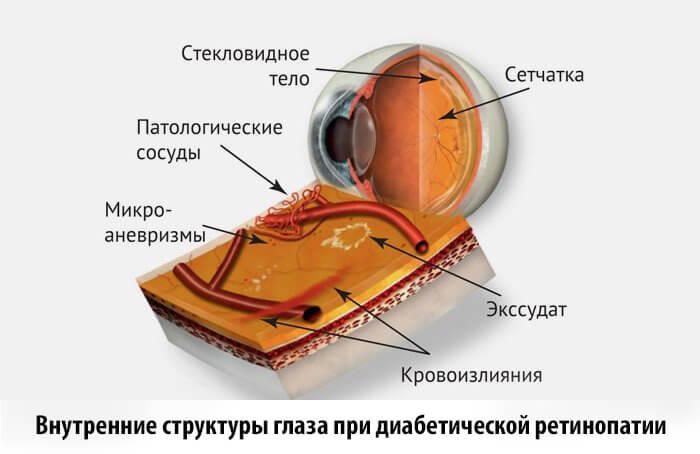 Диабетическая ретинопатия лечение лазером операция Запорожье