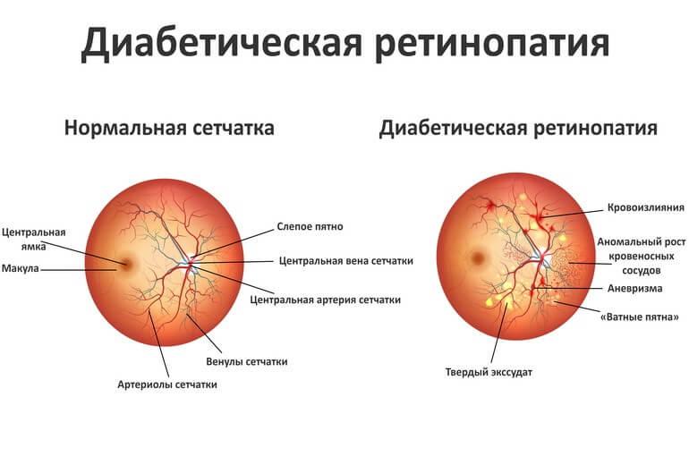 Диабетическая ретинопатия лечение в Запорожье