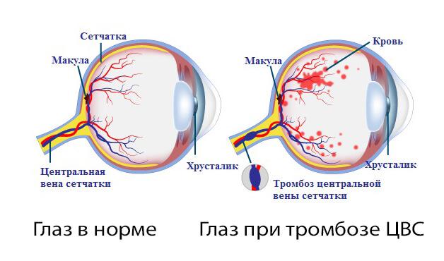 Современное лечение тромбоза цвс