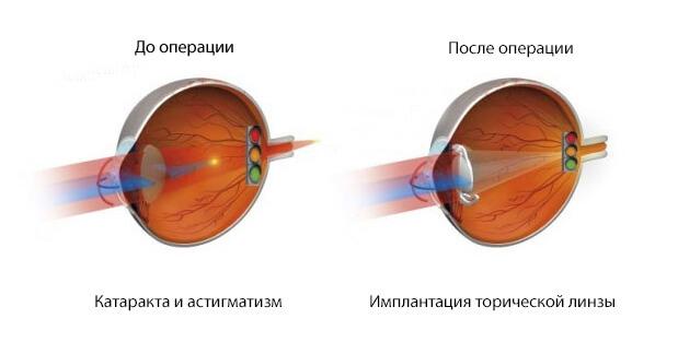 Астигматизм и катаракта операция до и после