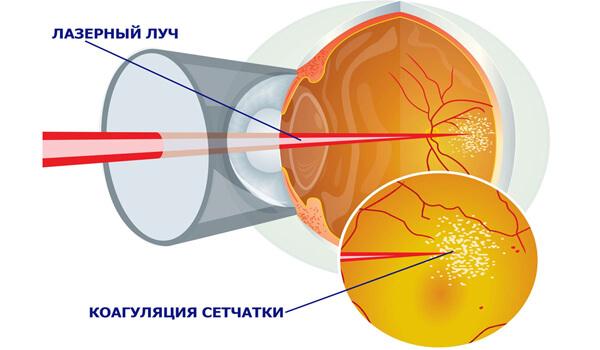 Лазерное лечение глаз Запорожье