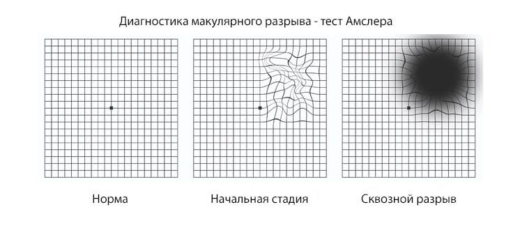 Диагностика макулярного разрыва сетчатки