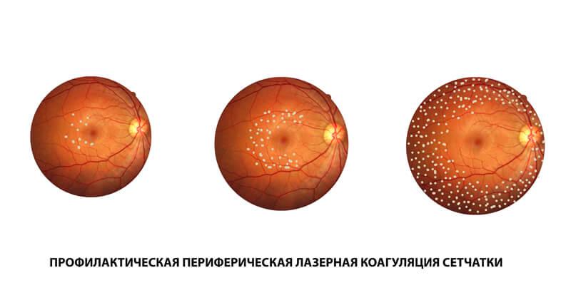профилактическая периферическая лазеркоагуляция