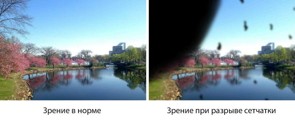 Зрение при разрыве сетчатки