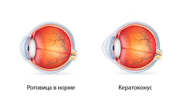 Заболевание глаз кератоконус