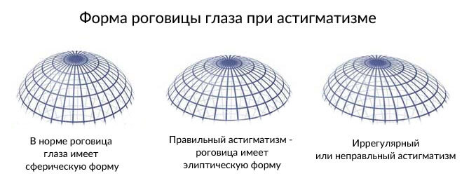 Роговичный астигматизм