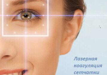 Лазерная коагуляция сетчатки глаза